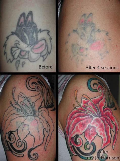 laser tattoo removal birmingham laser removal birmingham uk