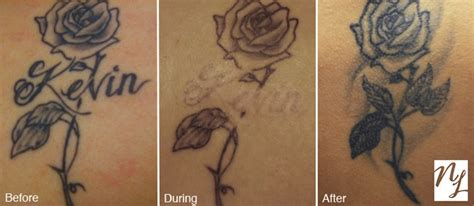 new look tattoo removal before after photos new look laser removal