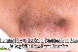 home remedies to get rid of blackheads learning how to get rid of blackheads on nose is easy with
