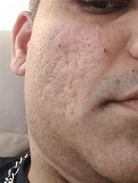 i got rid of all my deep rolling acne scars with msm cream rolling acne scar www pixshark com images galleries