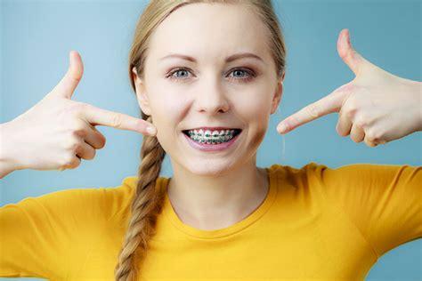 colored braces color braces charleston colored braces mount pleasant
