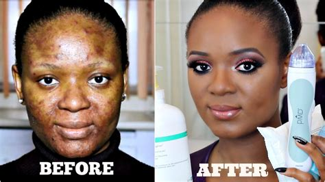 scar removal cream for african americans african american scar removal cream from severe acne to