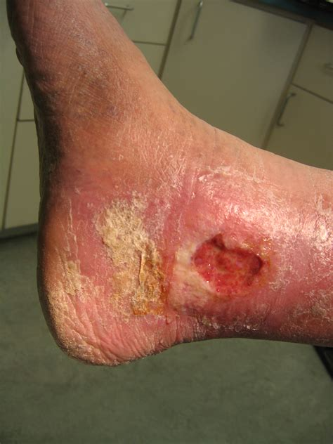 skin ulcer ulcers dr joseph e knochel d p m
