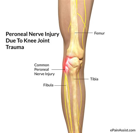 electrical problems surgery leg numbness after knee surgery plastic surgery