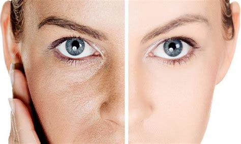 12 Ways To Minimize Your Pores by 5 Simple Easy Ways To Minimize Your Pores Styles Weekly