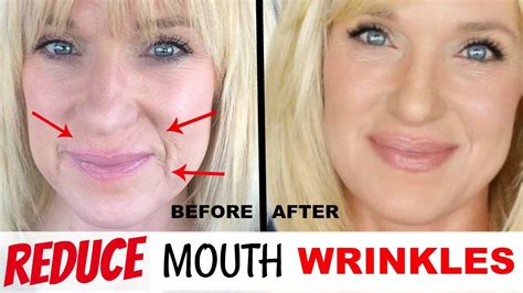 i got rid of all my deep rolling acne scars with msm cream get rid of mouth wrinkles without fillers youtube