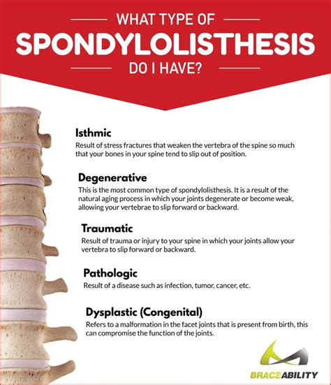 what do i do if i have a bench warrant what are common symptoms causes of spondylolisthesis