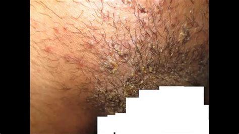 country with femle pubic hair pubic hair folliculitis impetigo youtube