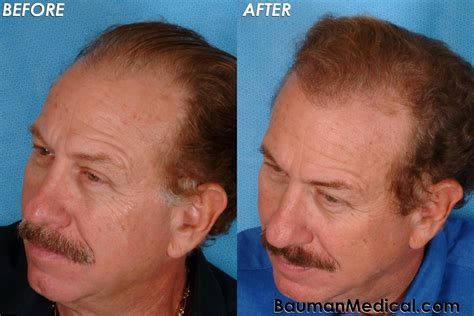 Hair Transplant Before And After | dr alan bauman review plastic surgeon doctor florida