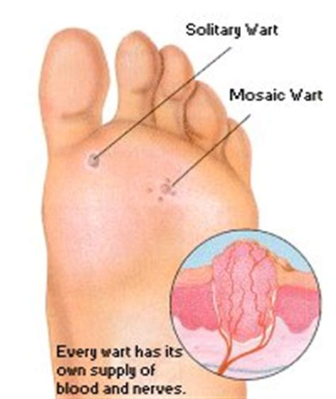 Planter Wort by Diagram Of A Plantar Wart Pictures