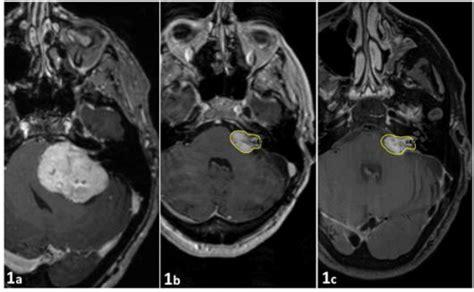 schwannoma vestibular exle of a large vestibular schwannoma treated with