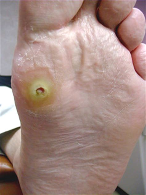 puncture wound conditions we treat foot and ankle institute barry miami shores florida