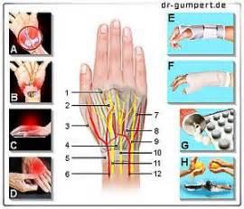 schmerzen in der handfläche schmerzen im handr 252 cken