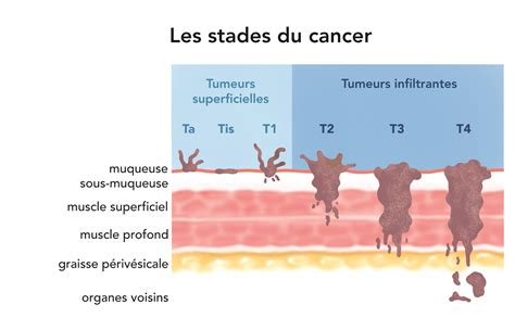 le stade du cancer le diagnostic institut national du
