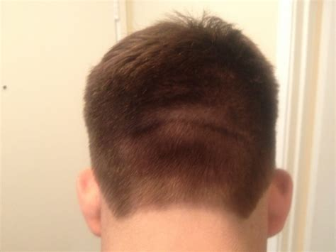 the back of my husbands head showing his horribly uneven