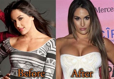 nikki bella ghana nikki bella plastic surgery before and after boob job picture