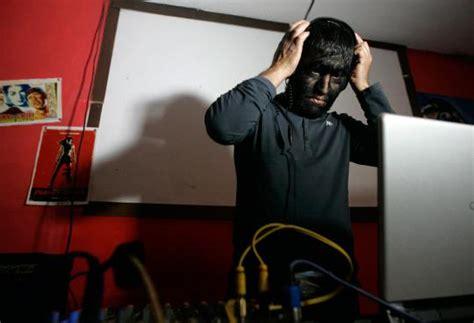 Headphone Bulu aneh orang ini wajahnya ditumbuhi bulu