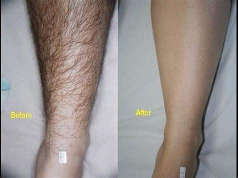 losing leg hair on men अनच ह ब ल स छ टक र प ए remove unwanted hair
