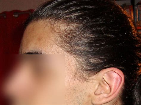 short hairs hairline female hair loss informationi have short hairs in the temples