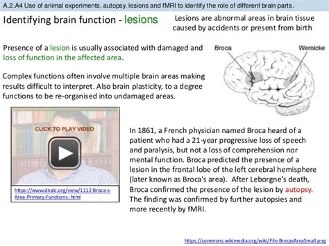 brain sections and what they do bioknowledgy a 2 the human brain