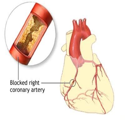 how to treat angina by using vitamins benefits of