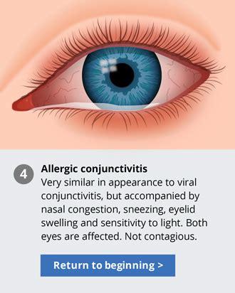 pink eye sensitive to light allergies light sensitivity decoratingspecial com