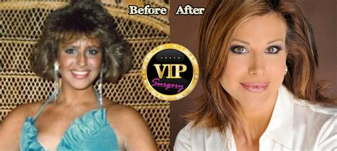 dominique sachse plastic surgery before and after photos dominique sachse plastic surgery before and after photos