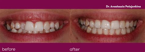 orthodontics  smile studios