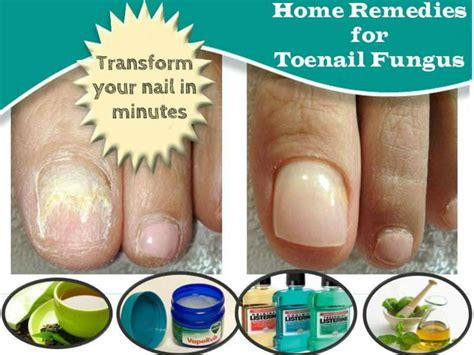 home remedies for toenail fungus apply ways