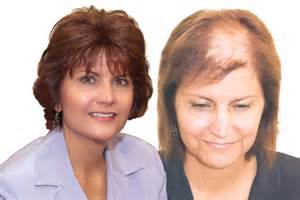 wigs for thinning hair that are not to wear gemtress before and after hair products