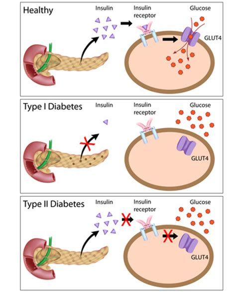 Mukena Type2 1 diabetes science tuition co uk