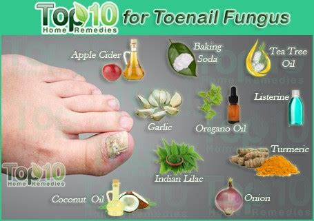 home remedies for toenail fungus top 10 home remedies