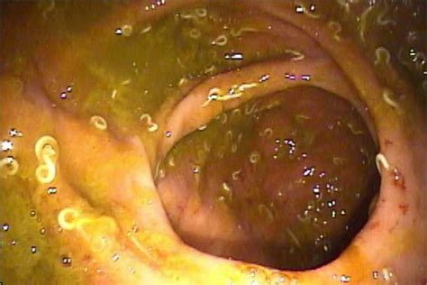 worm medicine the worms crawl in the worms treat colitis