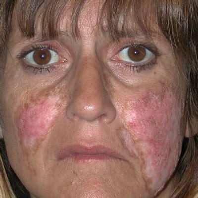systemic lupus erythematosus الذئبة الحمامية الجهازية