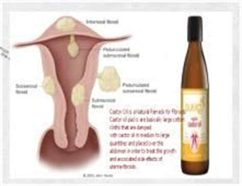 Castor Foot Detox by Remedies For Fibroids In The Uterus Infertility