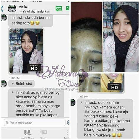 Adeeva Whitening Complete review paket perawatan wajah adeeva skincare asli original