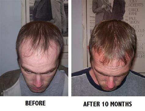 real minoxidel results balding brahs who are on minoxidil rogaine stay safe pls