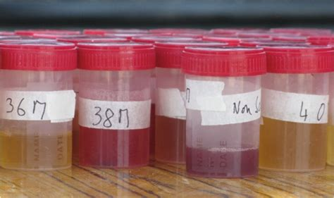 Blood In Urine And Stool by Natureplus Flies And Parasites Tags Parasites