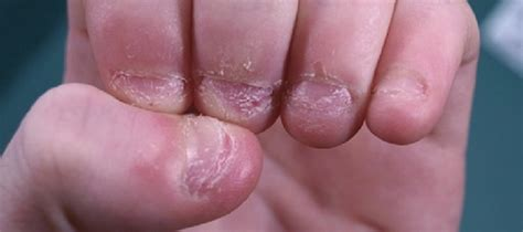 Do You Bite Your Nails by To The Nail Biter