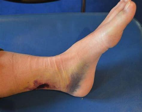 contrattura interno coscia ematoma muscolare a coscia polpaccio o braccio cause e