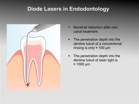 diode laser dental treatment laser dentistry clinical application 171 prestige dental care