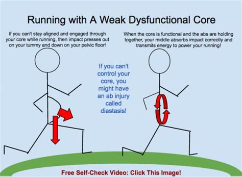running with a weak dysfunctional will make diastasis recti and pelvic floor issues worse