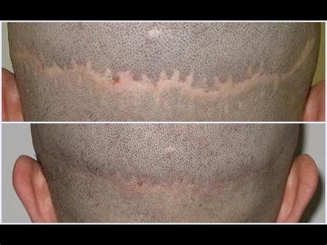 bad c section scar bad hair transplant scars www pixshark com images