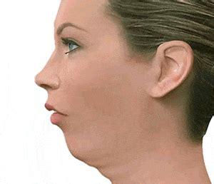 andrea janeiro problema cara tratamiento de la retrognatia mandibular o clase ii iomm