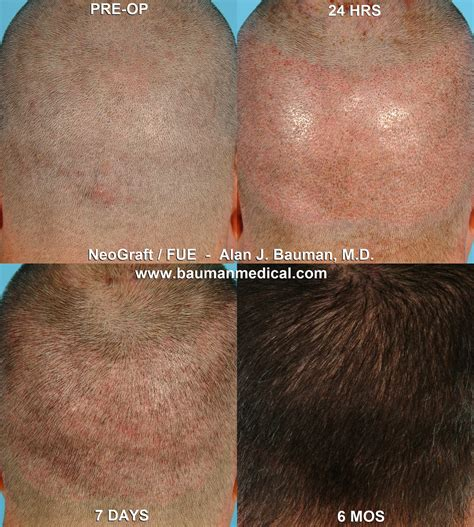 neograft recovery timeline hair transplant recovery neograft hair transplant recovery