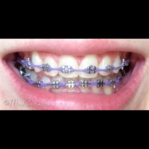 braces colors that make teeth whiter what color of braces make your teeth appear white on the hunt