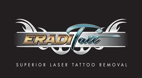3 things laser tattoo removal techs should tell you