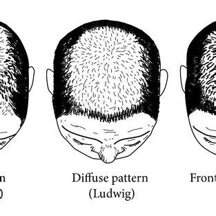 christmas tree pattern hair ludwig pattern of hair loss in women three point scale