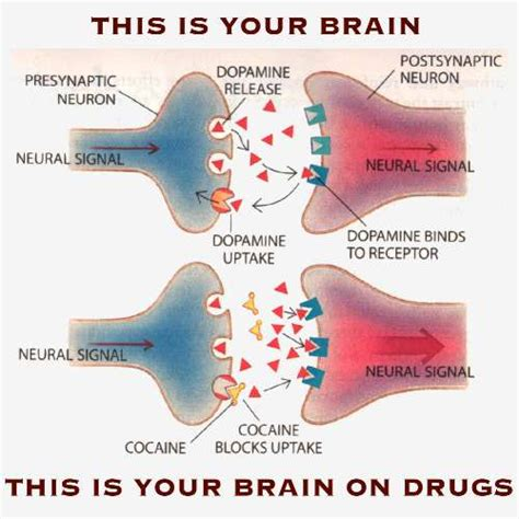 Brain Detox Symptoms by Post Acute Withdrawal Paws Can Am Interventions