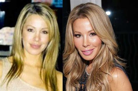 lisa hochstein do before she married how real are the housewives rhom plastic surgery exegesis